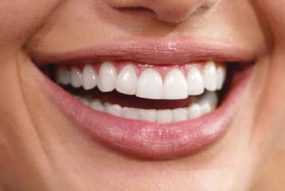 Kada i kako se ugrađuju krunice za zube?