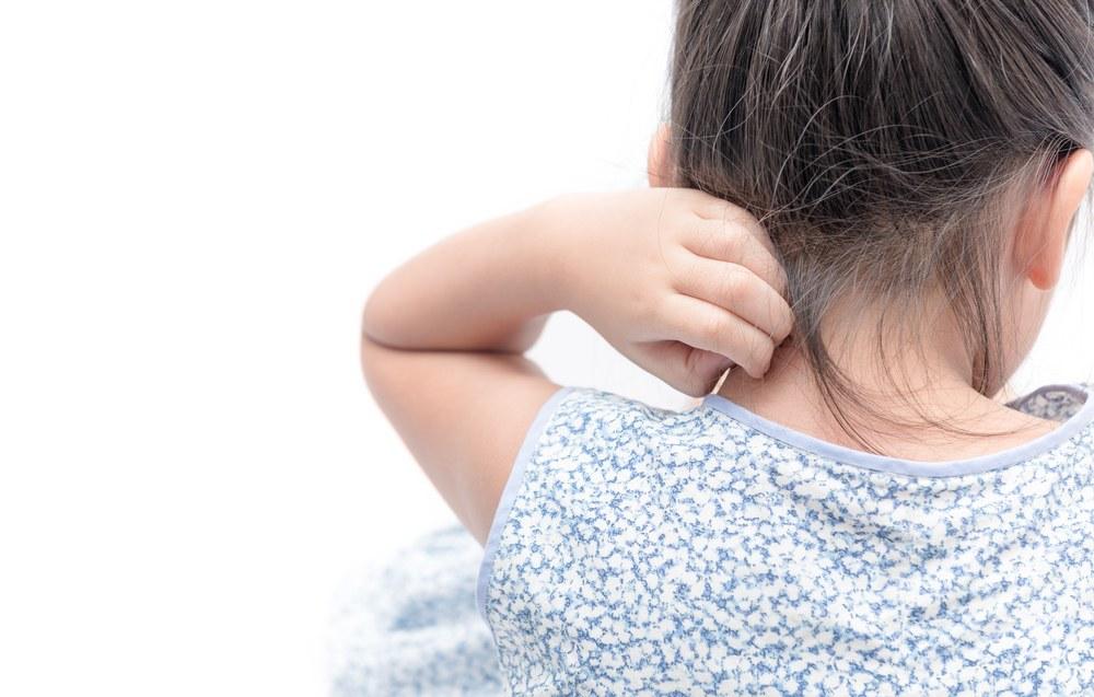 Kožna oboljenja koja se javljaju u dečijem uzrastu